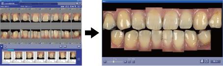 写真:歯牙自動配置と連結イメージ